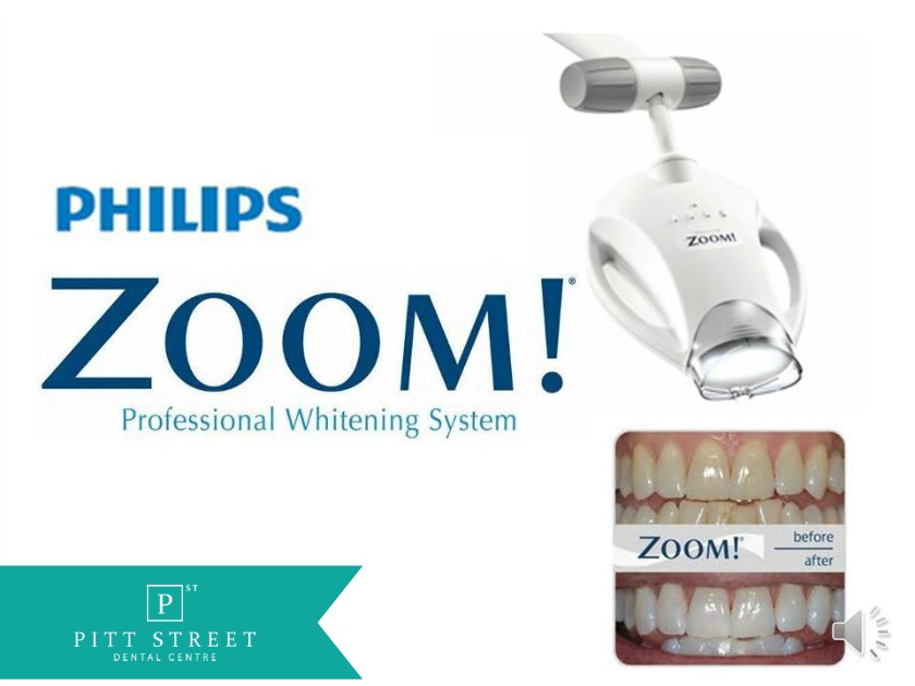 how to use philips zoom day white