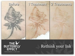Kimba Likes The Butterfly Effect Laser Clinic, Tattoo Removal,